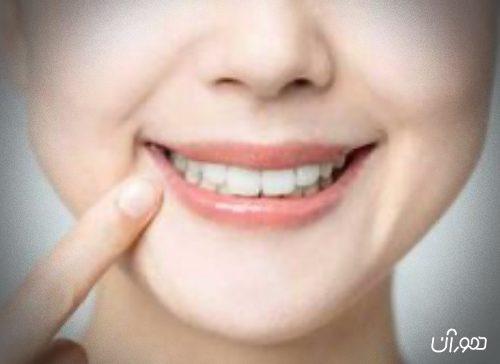 5 نکته مسواک و بهداشت دندان ها