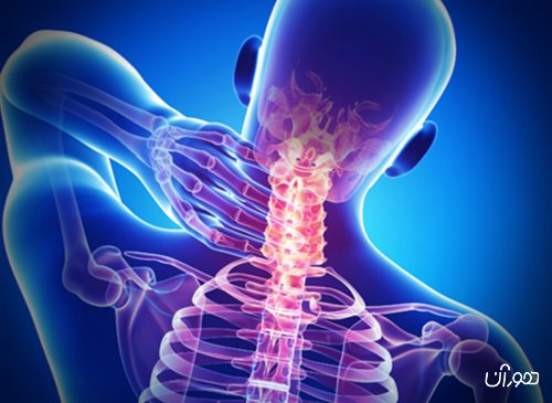 5 راه آسان و طبیعی برای رهایی از گردن درد