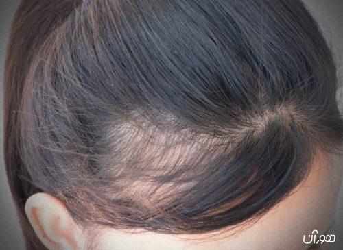 6 علت اصلی ریزش مو در زنان