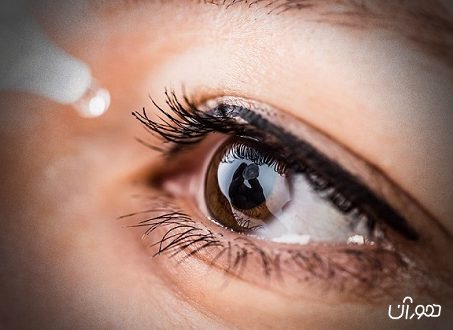 سندروم خشکی چشم