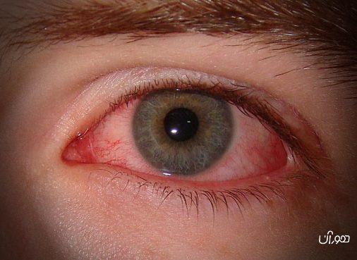 درباره سندرم خشکی چشم بیشتر بدانیم