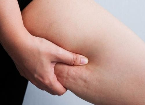 8 روش طبیعی و سالم برای از بین بردن سلولیت