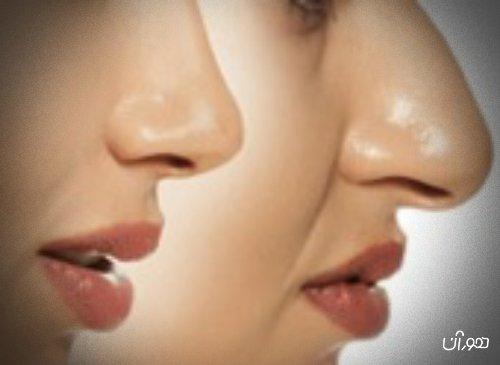 5 نکته مهم زیباسازی با نخ بینی