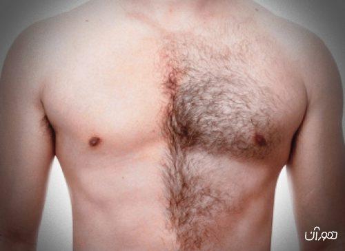 5 راه از بین بردن موهای زائد بدن